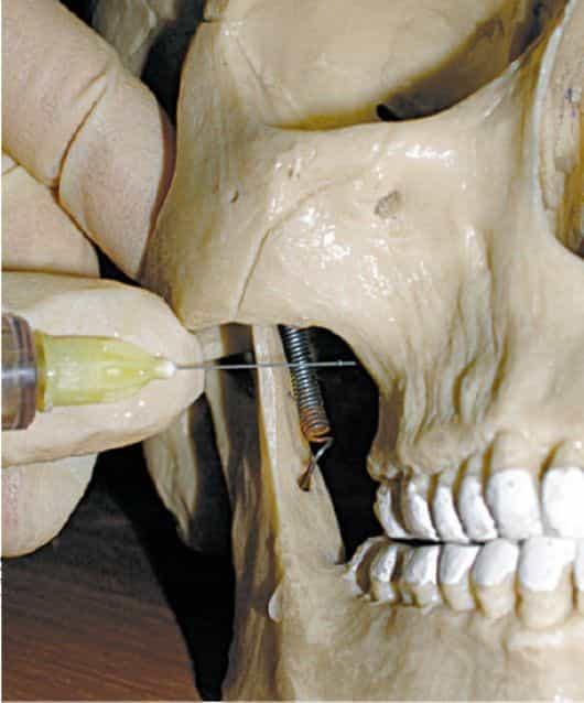 Туберальная анестезия в стоматологии