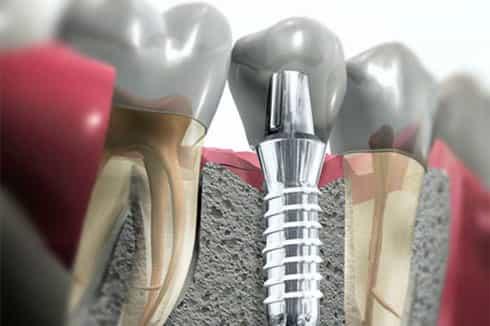 Реабилитация больных с применением стоматологических имплантатов