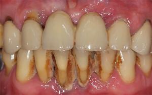 vidy-otbelivaniya-zubov-7[1]
