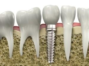 2014-02-25-04-11-implant