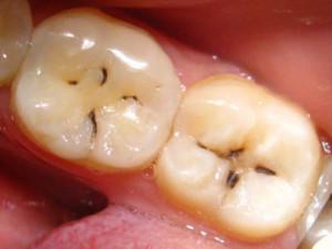 не закрытые фиссуры зубов