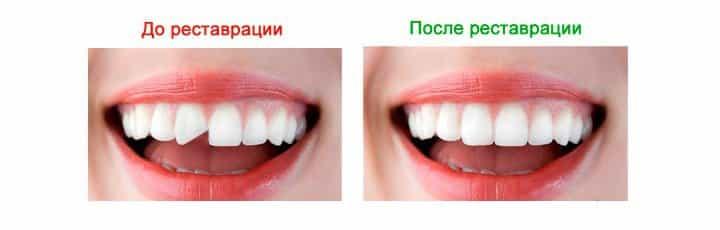 viniry-na-zuby-4